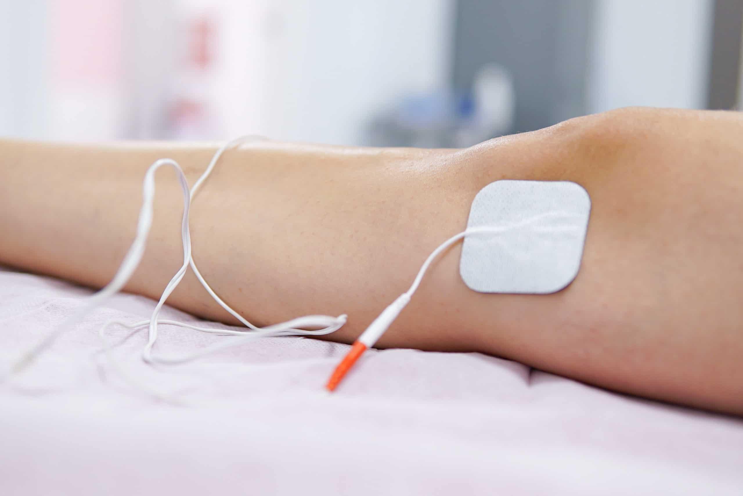 Electroterapia en Cuenca