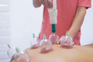Necesitas Cupping, en Clinica Fisioteriapia Nuria Ponce situada en Cuenca estan los mejores profesionales